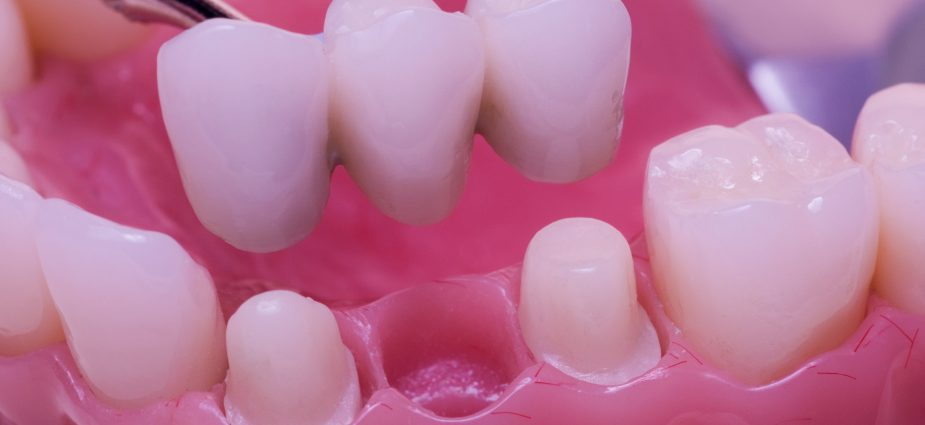 ADVANTAGES-AND-DISADVANTAGES-OF-FIXED-DENTAL